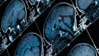 ¿Qué sabes de la epilepsia?