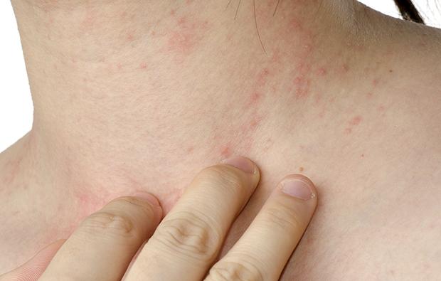 Dermatitis_620x395_02