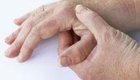 Rizartrosis o artrosis del pulgar