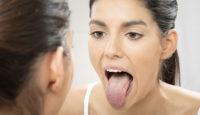 ¿Sabes qué es la xerostomía o boca seca?