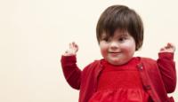 "Día Mundial del Síndrome de Down, ""que un cromosoma no nos separe"""